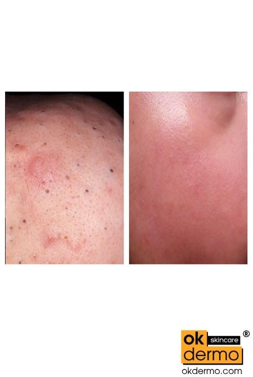Skin Blackheads removal with Salicylic acid 12% Cream