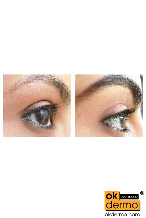 Bimatoprost Eyelash Growth Uk