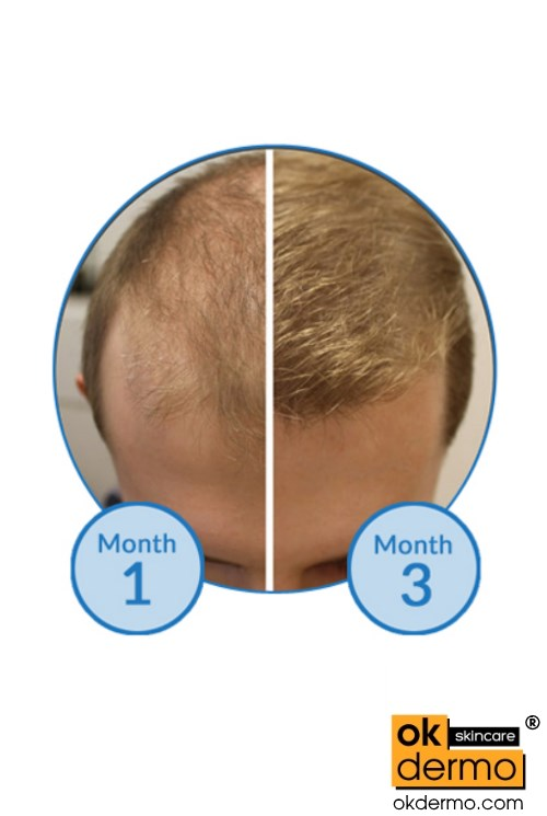 Hair Fall Before After Regrowth Minoxidil 10%