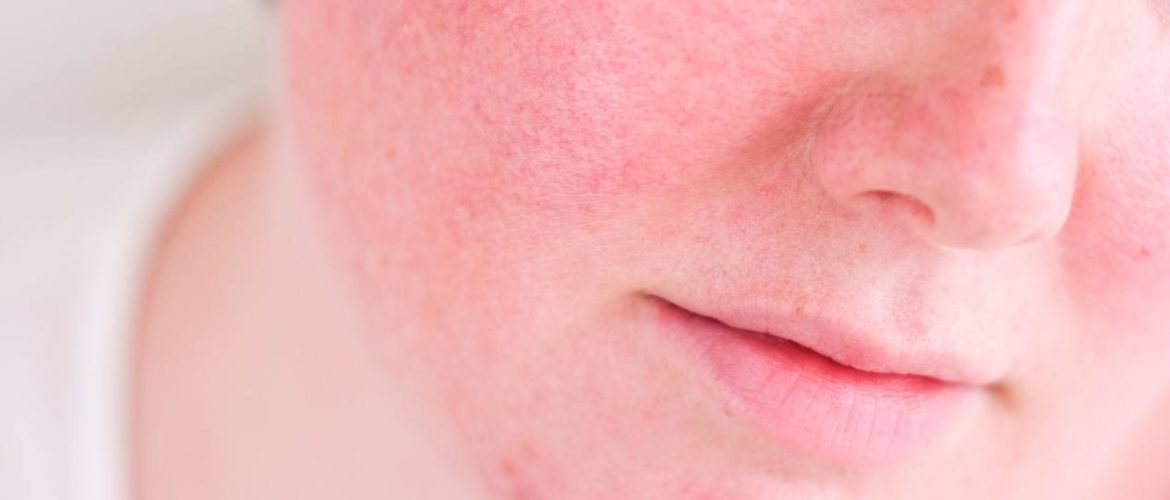 How to Minimize Irritation & Redness With Retin-A