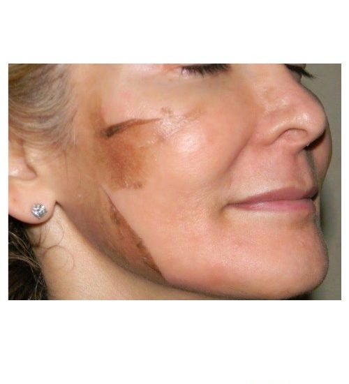 Skin peeling, exfoliating with Retin-A Cream Tretinoin
