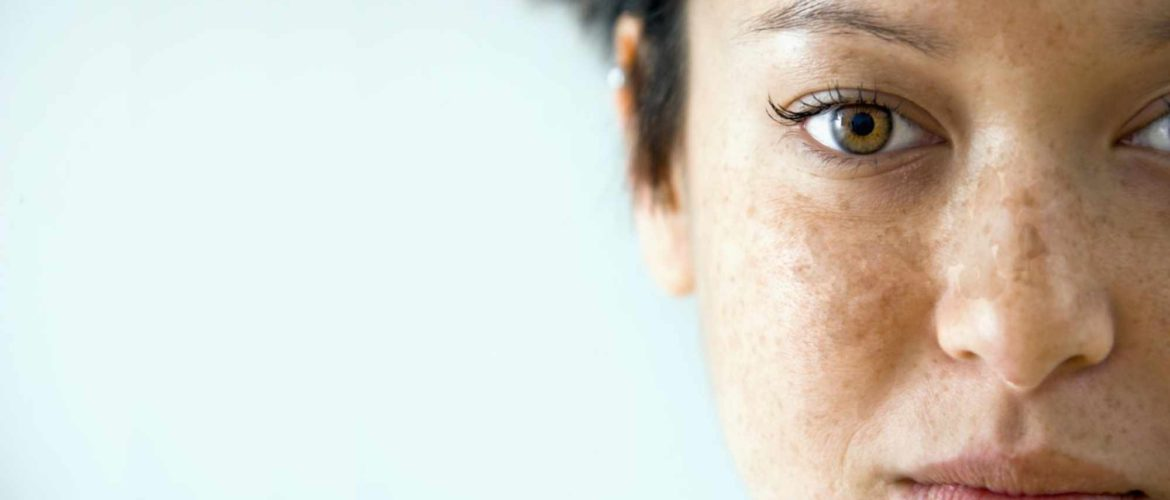 What is Melasma (Chloasma) Skin Discoloration?
