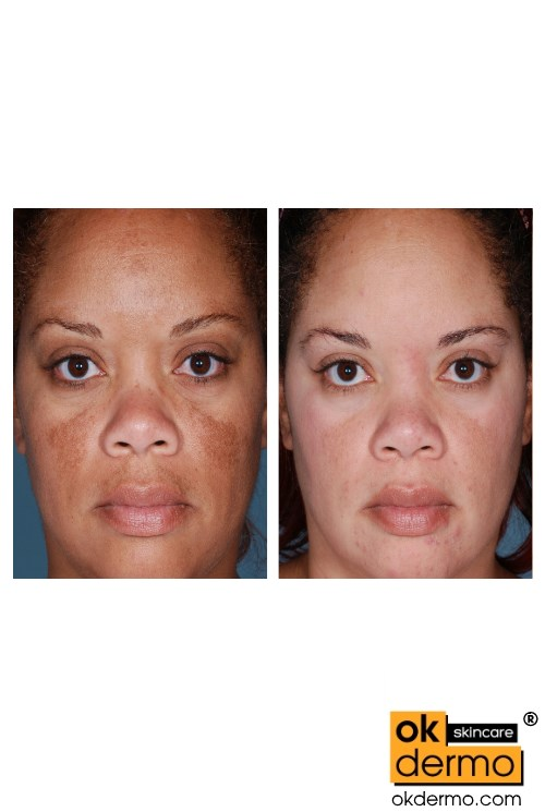 Hydroquinone Before And After Black Skin | www.pixshark ...