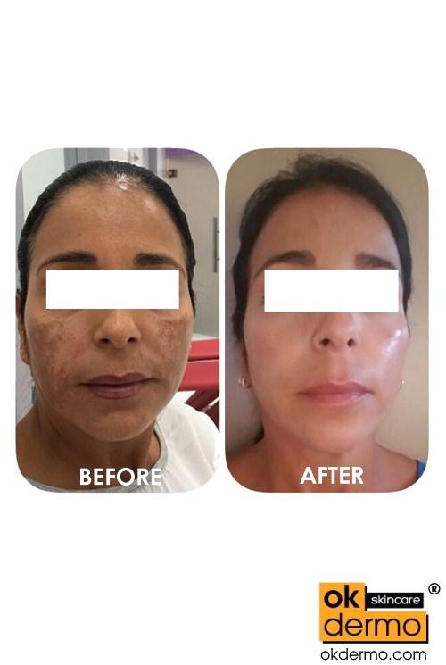 dermatology anti aging solution