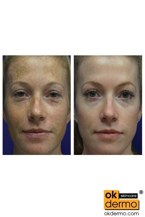 Natural Antifungal Skin Treatment