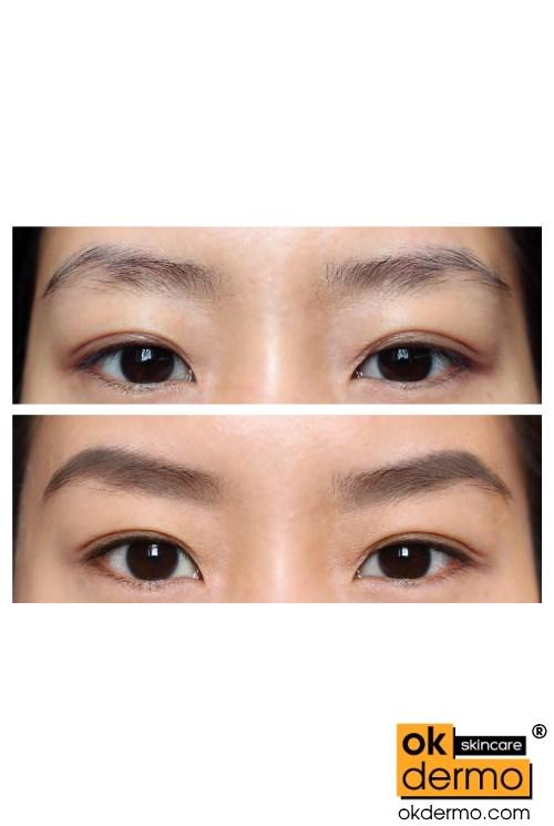 Lumigan Eyelash Growth Serum 3ml Bimatoprost 003 Drops
