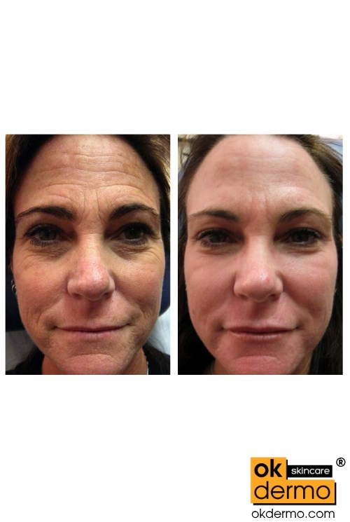 Anti Aging cream Botox Before and After