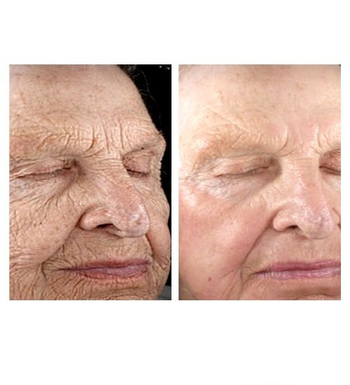 Retin-A Wrinkle Treatment Cream