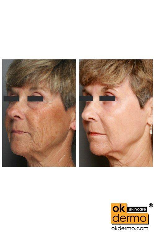 Retin a wrinkles treatment