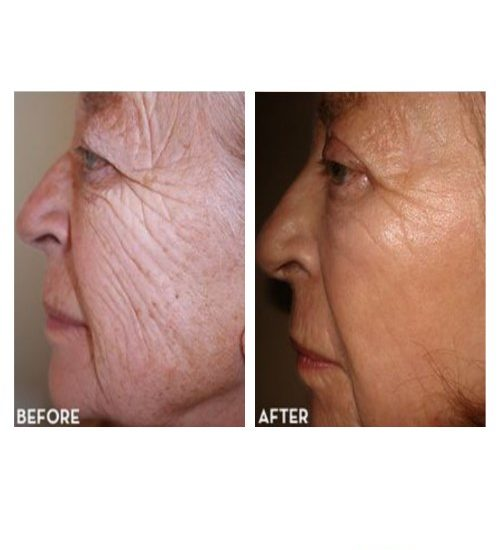 Can avita cream smooth facial scars