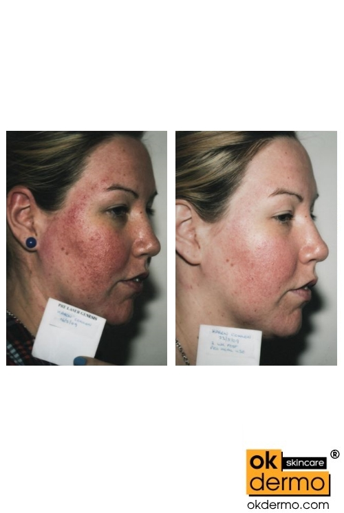 Natural Rosacea Treatment Reviews