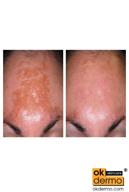 Hair Removal Natural Treatment
