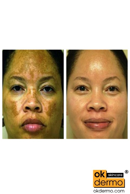 Natural Antifungal For Face