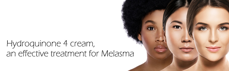 Hydroquinone 4 cream, an effective treatment for Melasma