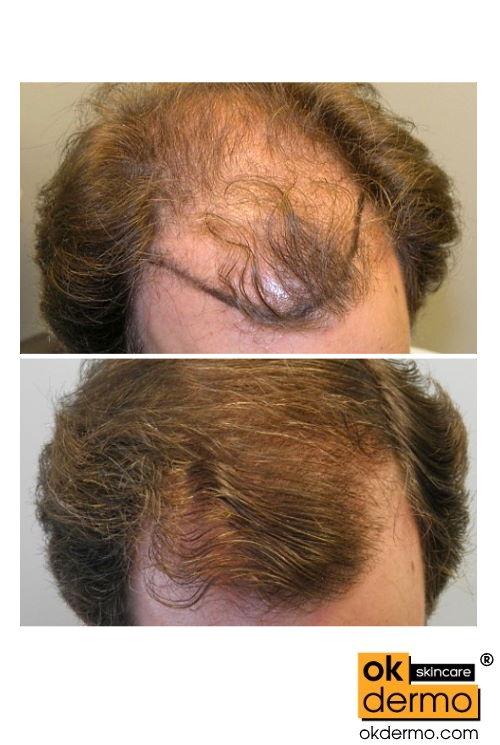minoxidil 12.5 for beard