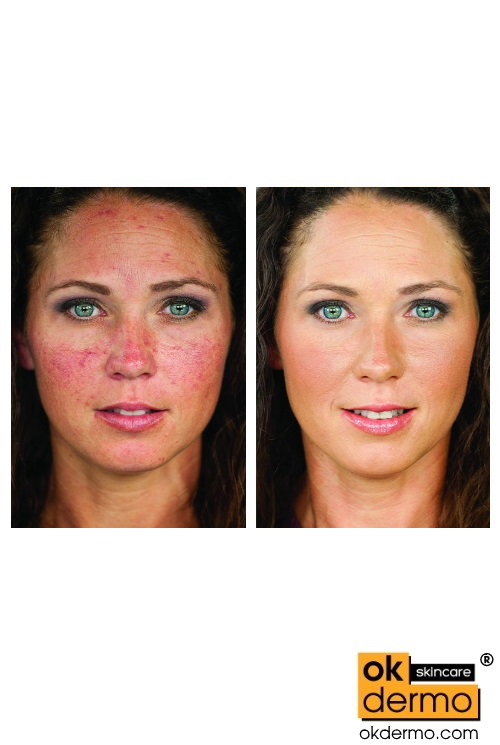 Soolantra before and after treatment Rrosacea ivermectin cream for rosacea soolantra coupon soolantra over the counter ivermectin cream